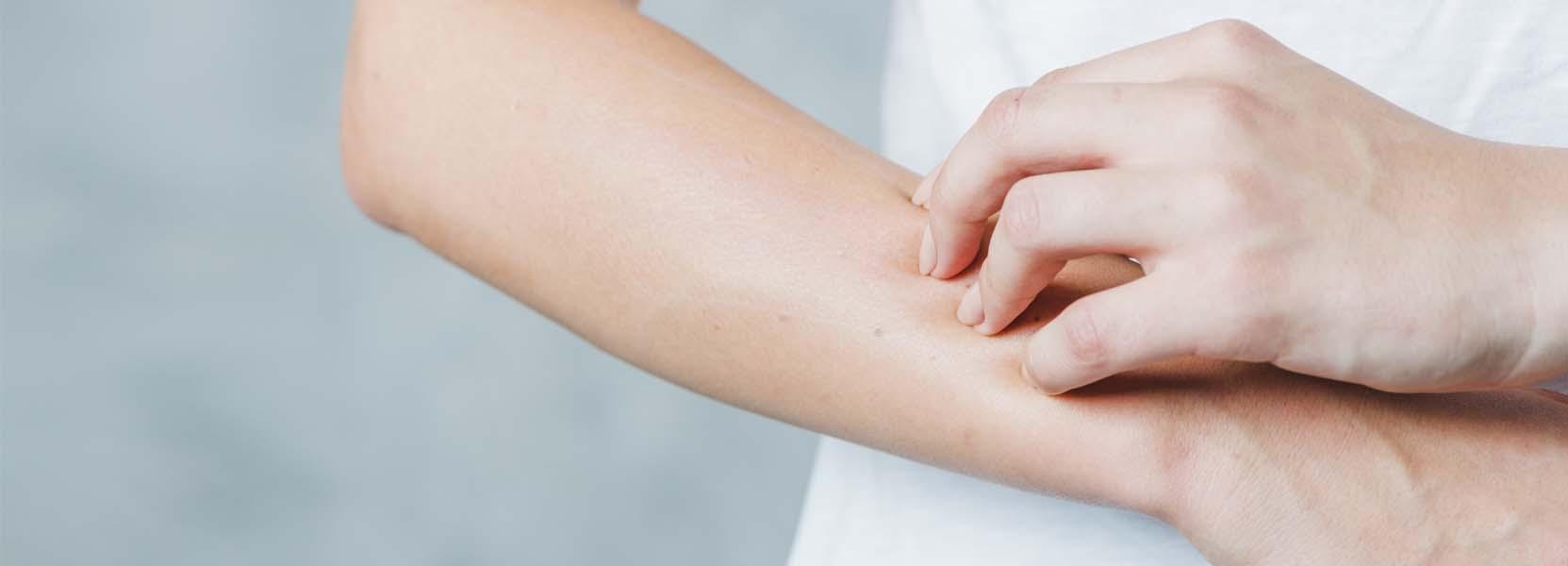 mano arrascandose el brazo