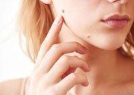 dedos señalando lunares en la cara de una chica